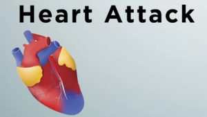 "diagram of heart ""Heart Attack"""